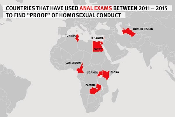 "Countries Impose Forced Anal Exams to Determine ""Evidence"" of Homosexuality"